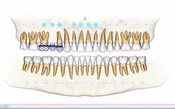 dental implant course online
