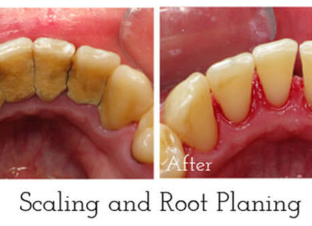 Dental cleaning before and after