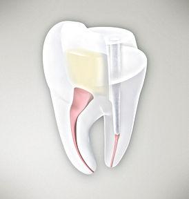 endodontic courses
