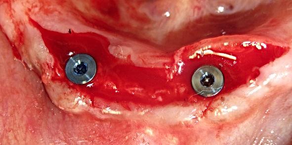 dental school implants