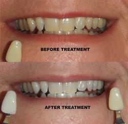 Yellow to white teeth