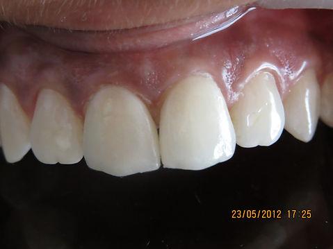 dental technician courses