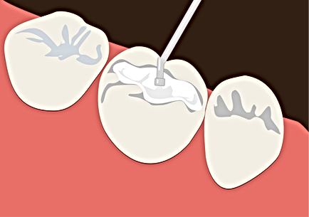 cavity filling