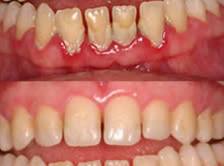 Treatment for gum disease in humans