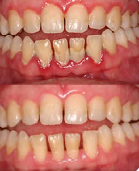 help with gum disease