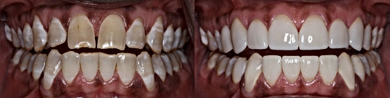 cosmetic dentistry training courses