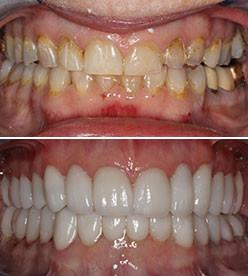 General Dentist Schooling