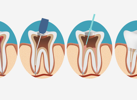 What is root canal filling?