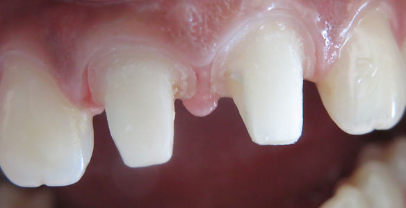 dental implant restoration courses