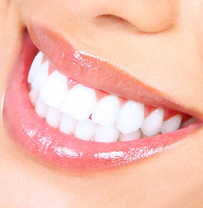 Woman smile.jpg Teeth whitening.jpg Dent