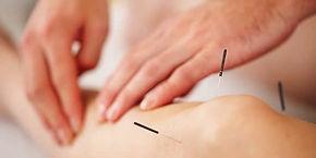 Acupuncture treatment austin