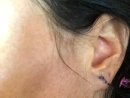My even newer earlobe...
