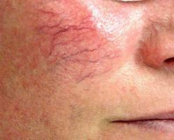 Telangiectasia Removal