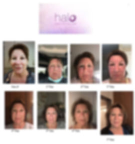 Teresa Halo Before After.jpg
