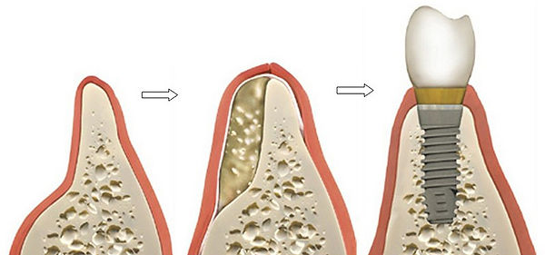 Ridge Augmentation Bone Graft  - Dr. Ryan Serra