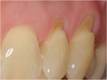 Gum Graft Pre Treatment - Dr. Ryan Serra