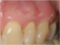 Gum Graft Post Treatment - Dr. Ryan Serra
