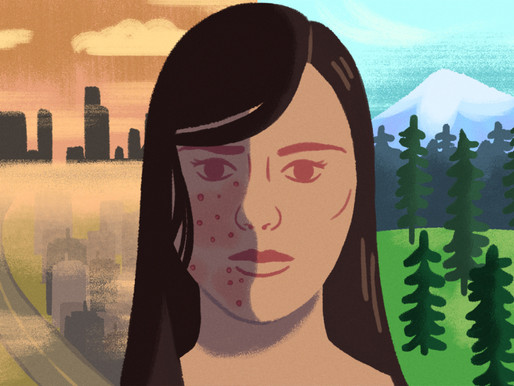 Does air pollution affect our skin?