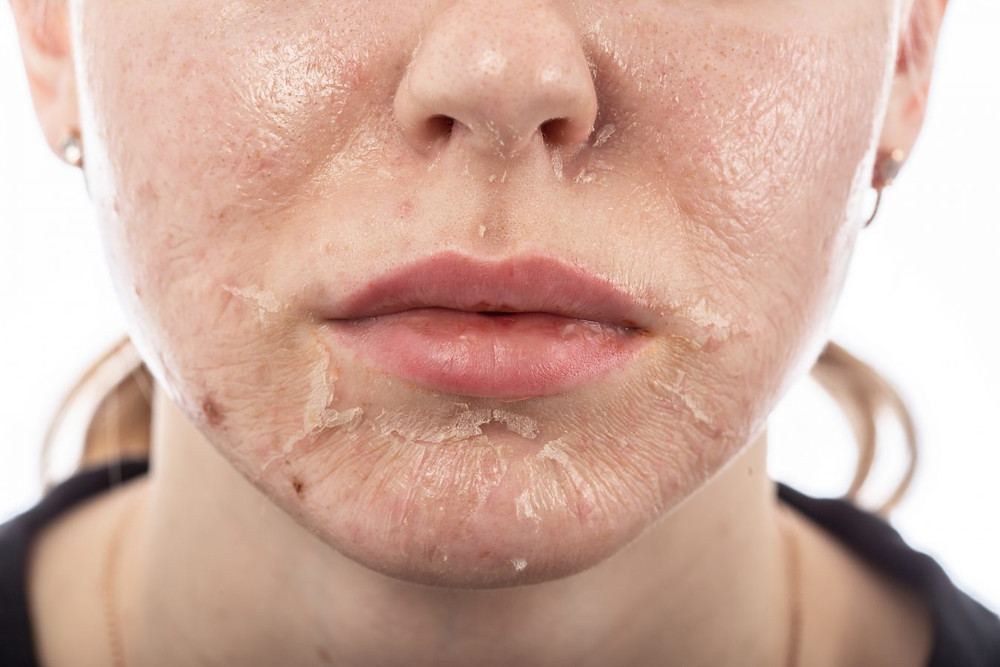 There's an episode on Sex and the City where Samantha gets a chemical peel and shows up to an event with skin that looks as raw as a piece of sushi. Extreme peeling, tender skin, prolonged redness and a long healing time were all things people had to prepare for when getting a chemical peel.