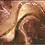 Thumbnail: TRASTORNOS  ARTICULARES/ TMD