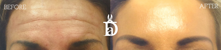 Botox baefore and after