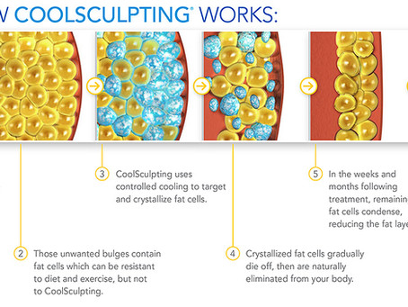 Why CoolSculpting?