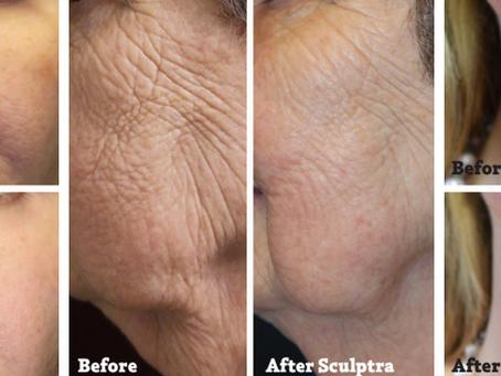 Collagen Stimulation: Natural Rejuvenation That Lasts