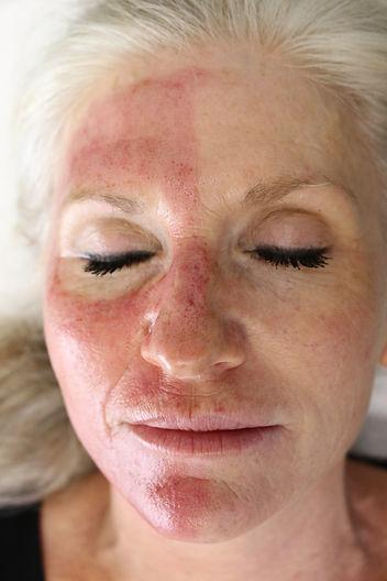 Vampire Facial Procedure
