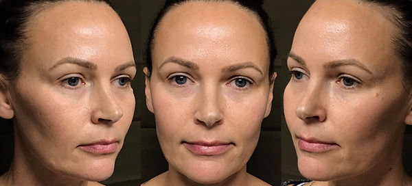 Full Face Filler Before & After