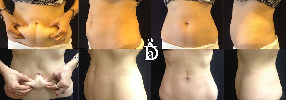 Coolsculpting before and afters