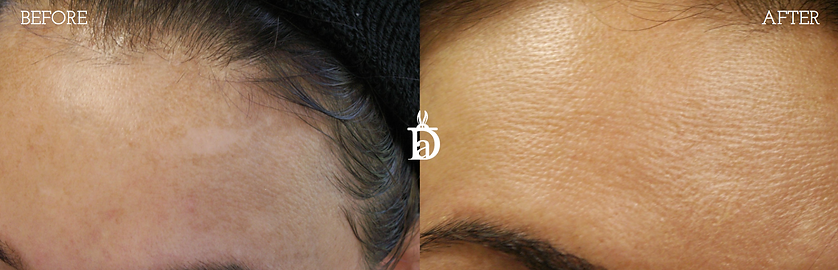Brow spot removal