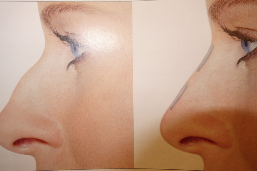 Profil næse