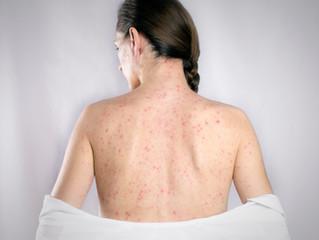 Herpes Zoster y el Factor de Transferencia