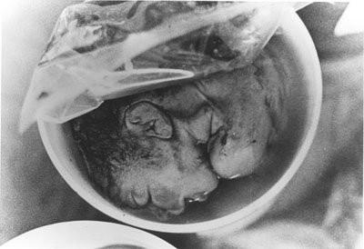 3rd trimester abortion victim