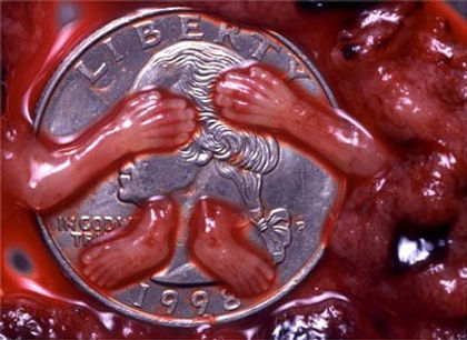 pro-life 9 weeks