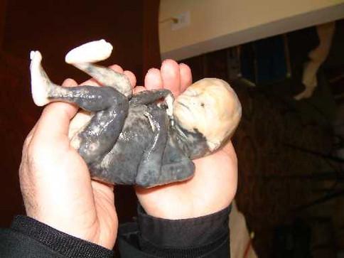 2nd trimester abortion victim