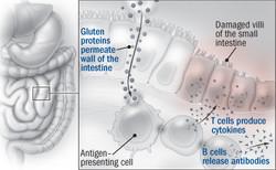 autoimmune-response-to-gluten