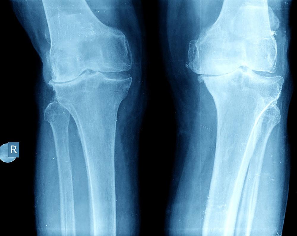 Grade 4 Knee Osteoarthritis