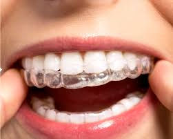 TeethWhiteningTrays forEXISTING PATIENTS