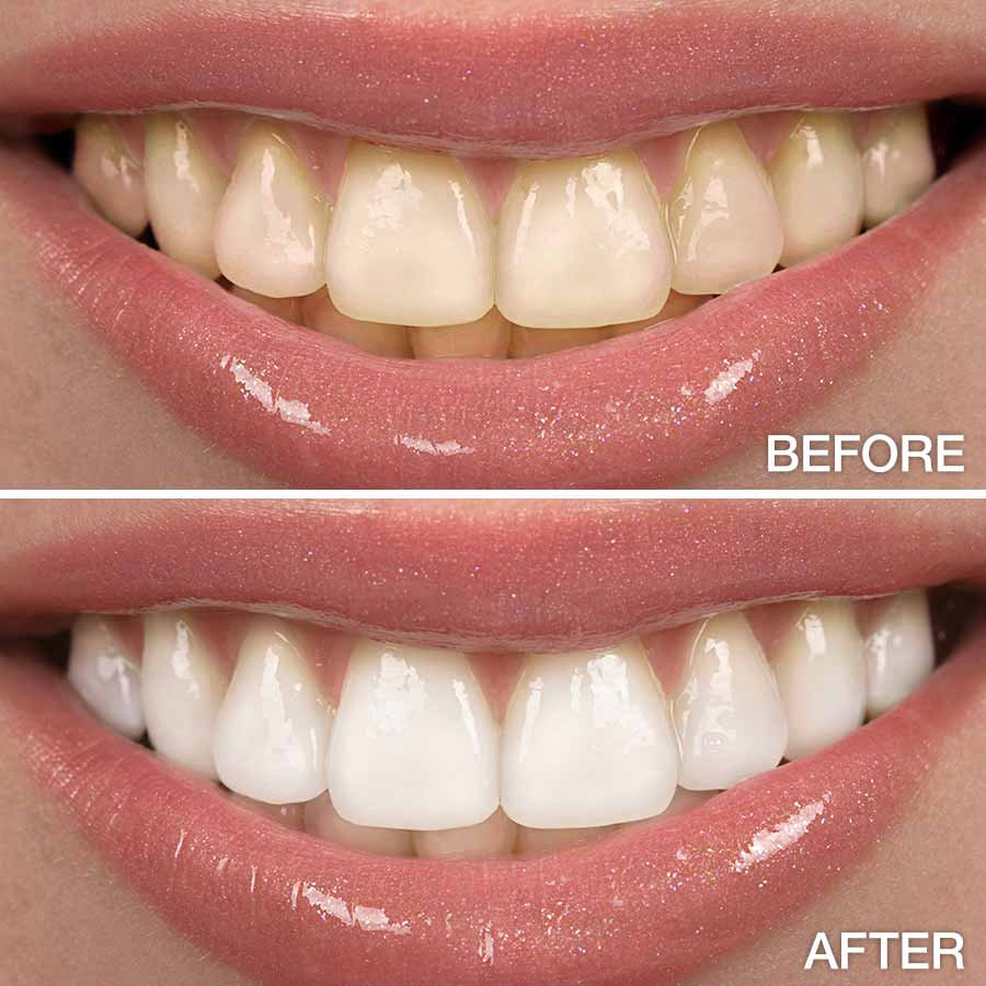 Teeth Whitening for EXISTING PATIENTS