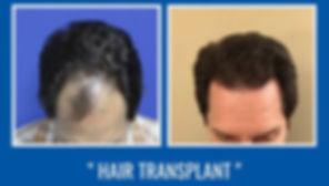 Hair-transplant-Dr-ARSLAN-1-300x300.jpg