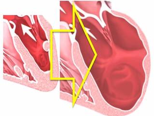 Причина смерти: дилатационная кардиомиопатия