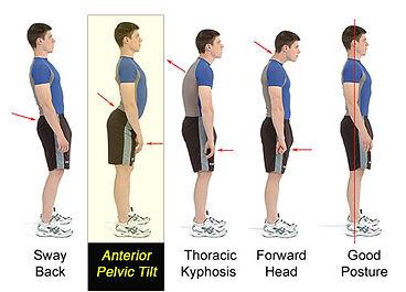 Anterior Pelvic Tilt Guide and Treatment