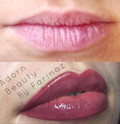 Full lip color (before & immediately after). Adding color and evenness to create beautiful full lips