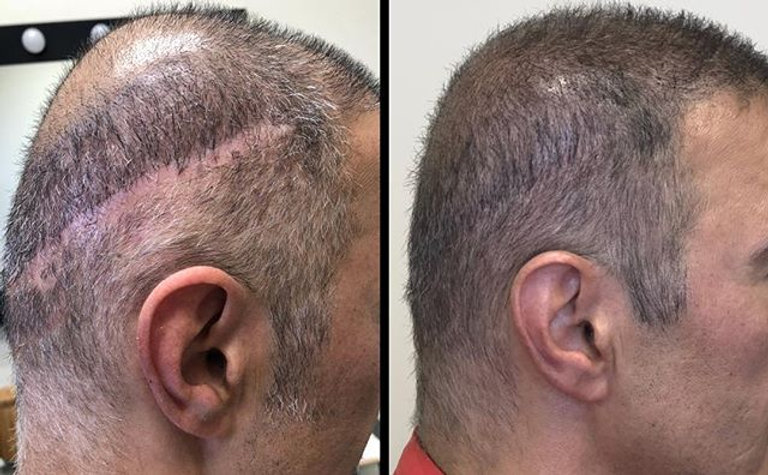 Micro Scalp Pigmentation treatment. ._.jpg