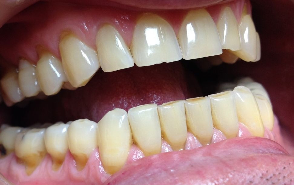teeth erosion and wear
