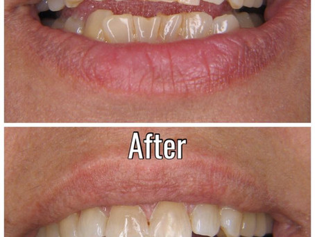 How to improve your smile with Cosmetic Tooth Bonding