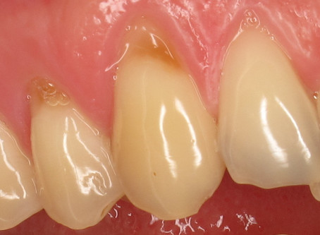 Minimally Invasive Dentistry- Composite Bonding Near the Gum Line