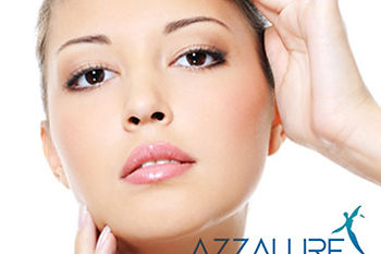 Azzalure wrinkle reduction