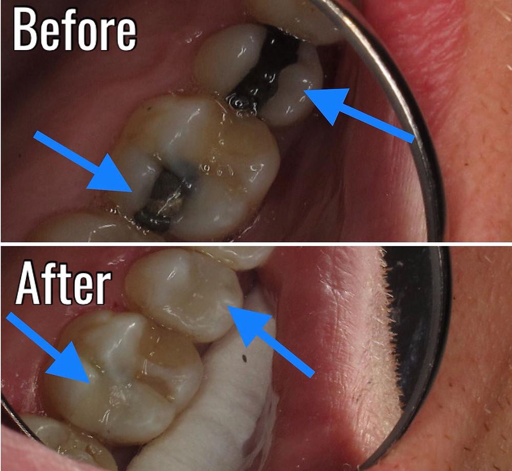 Amalgam filling replacement